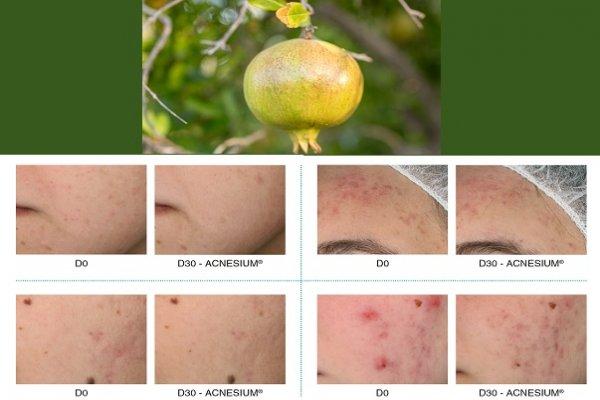 Silab lança Acnesium, para o cuidado da pele acneica