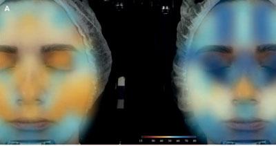 (Amostra de imagens de estudos de eficácia clínica (A) e pré-clínica (B) realizada pelo Grupo Kosmoscience).